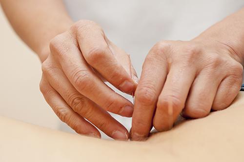 acupuntura intituto LI